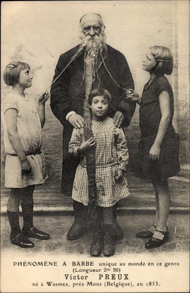 Postcard Phénomène à Barbe Victor Preux Né à Wasmes Akpoolcouk